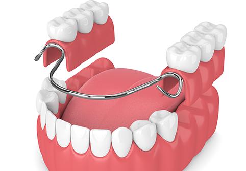 奥歯なども含め、複数の歯を失った場合