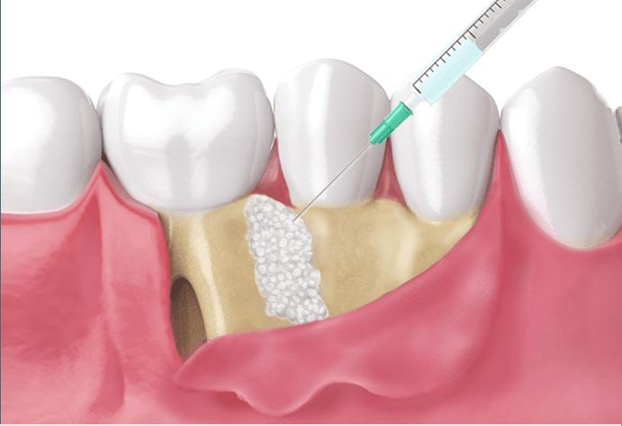エムドゲイン(歯周組織再生療法)