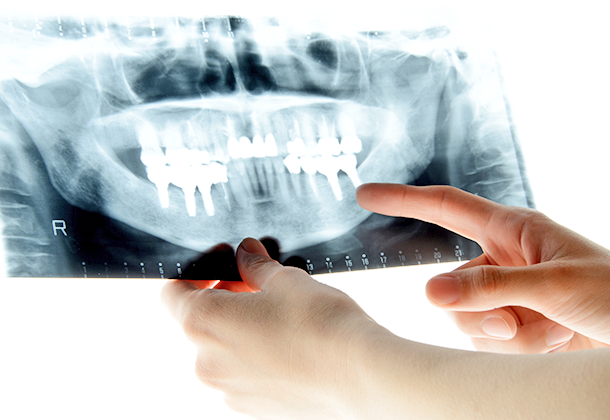 歯科用CTによる精密な検査と的確な診断